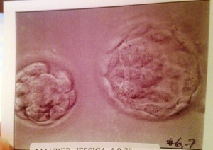 Two embryos